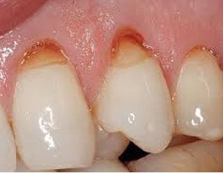 سایش دندان