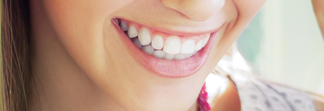 دندان زیبا و ردیف