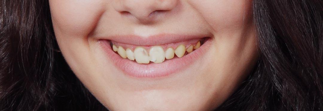 دندان خراب