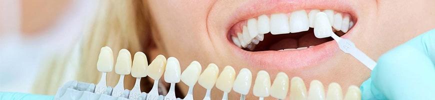 انتخاب رنگ در لمینت دندان