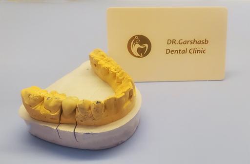 روکش دندان PFM