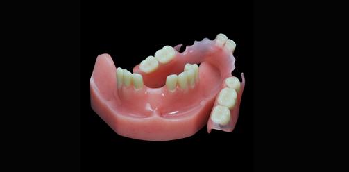 پروتز متحرک دندان