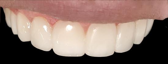 کامپوزیت دندان های جلو با کامپوزیت سرامیکی