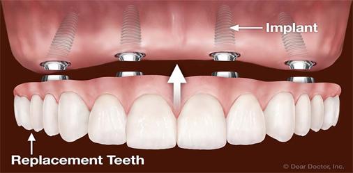 پروتز دندان متکی بر ایمپلنت