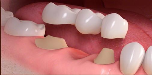 پروتز دندان ثابت (بریج دندانی)