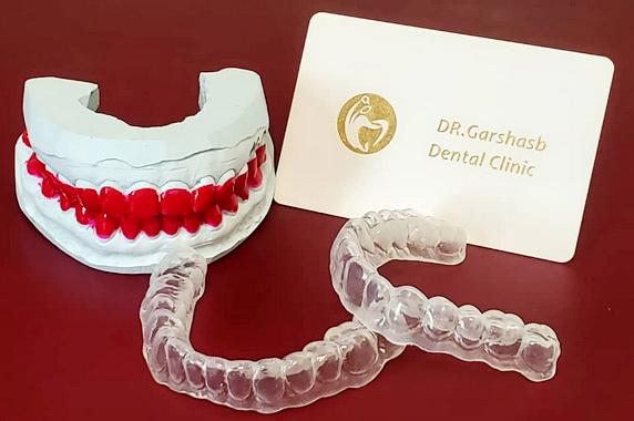 هوم بلیچینگ دندان