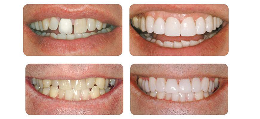 لمینت دندان در کلینیک