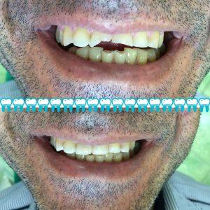 برطرف کردن مشکلات دندانی