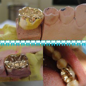 روکش طلا دندان