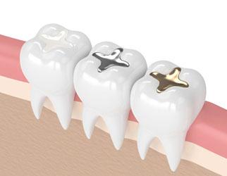 ترمیم دندان با آمالگام