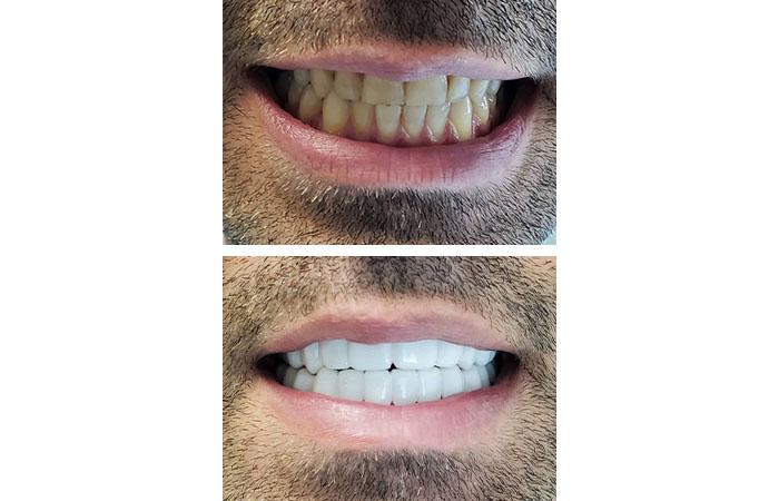 کاور دندان
