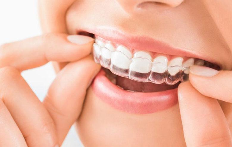 طراحی لبخند دیجیتال توسط دکتر نازنین گرشاسب زاده
