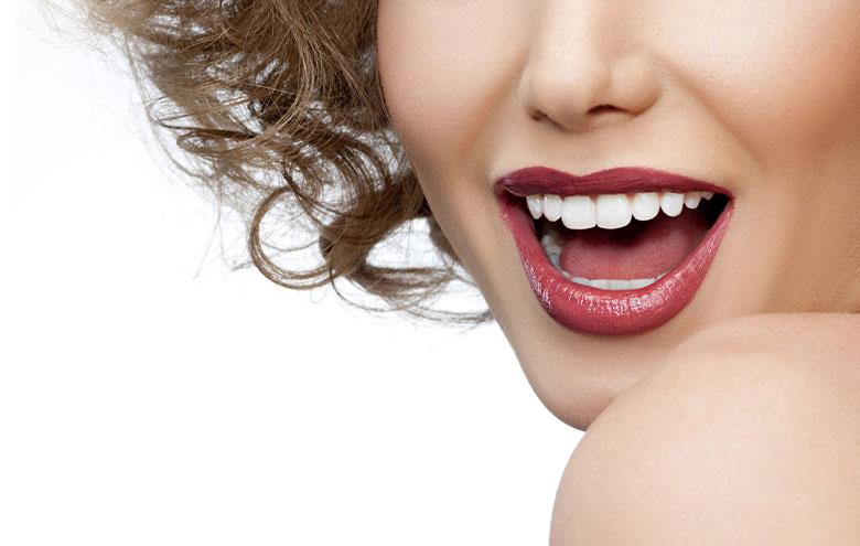 لیمنت دندان توسط دکتر نازنین گرشاسب زاده