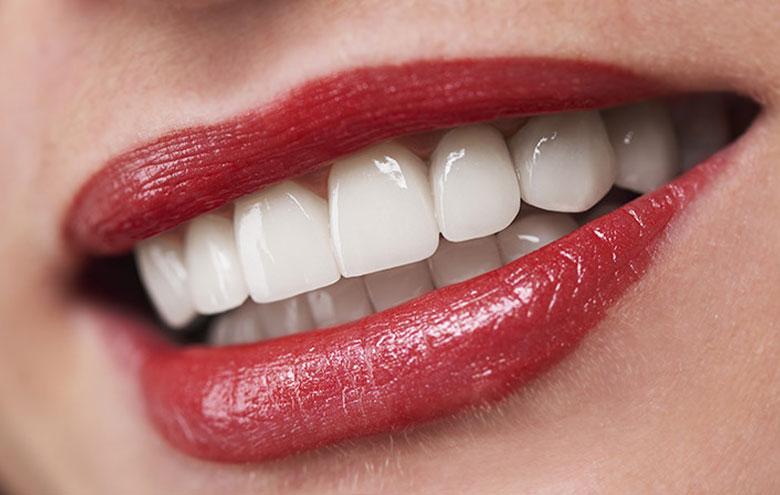 کامپوزیت دندان توسط دکتر نازنین گرشاسب زاده