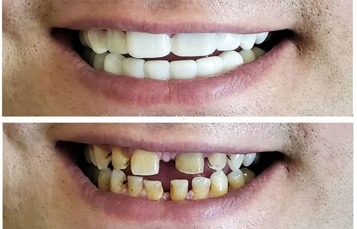 اسنپ آن اسمایل دندان