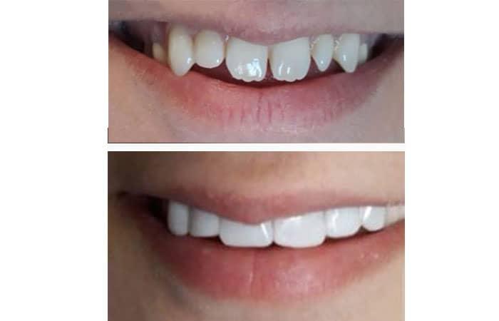 کامپوزیت دندان برای اصلاح شکل دندان