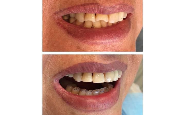 کامپوزیت دندان جلو