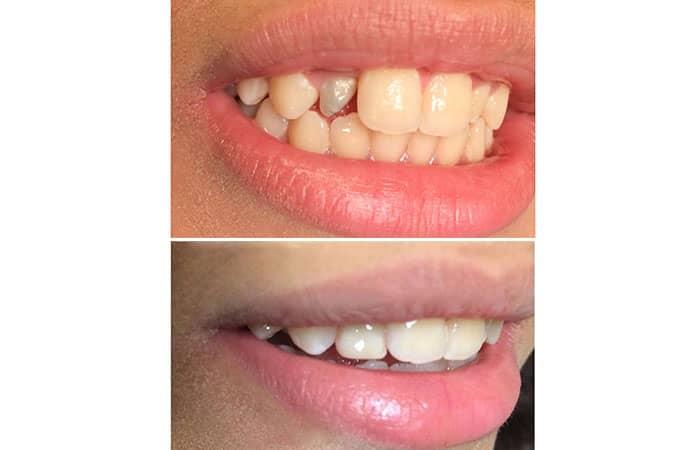 کامپوزیت دندان برای اصلاح شکل دندانهای بدفرم